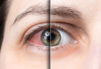 suho oko SYSTANE© Complete kapi za oci