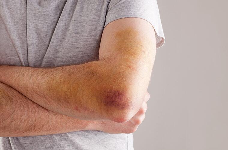 modrice po tijelu hematomi masnice bez razloga