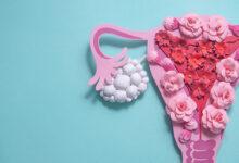 sindrom policisticnih jajnika policistični jajnici trudnoća neplodnost planiranje trudnoce