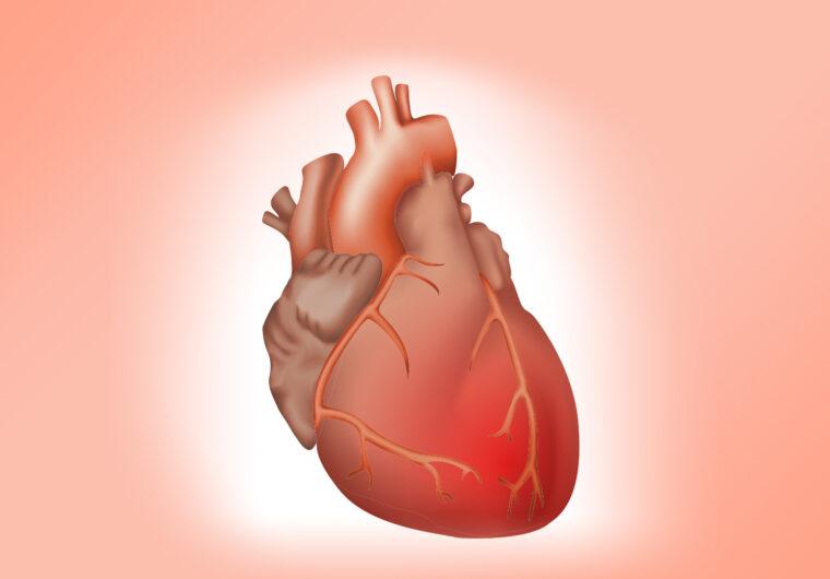 srcane-bolesti-bolesti-srca-perikarditis-bolesti-perikarda-lijecenje-srcanih-bolest