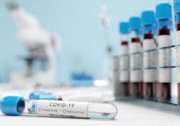 testiranje stanicnog imuniteta nova metoda testiranja COVID-19