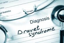 Dravet sindrom