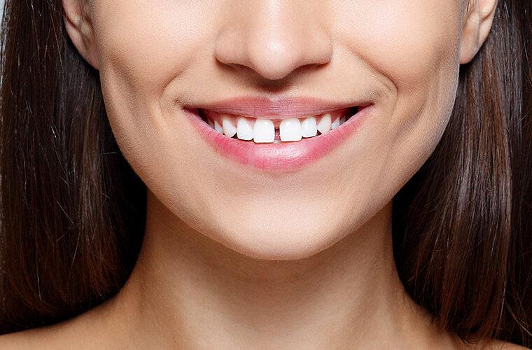razmak izmedu zubi dijastema