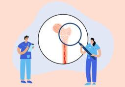 transplantacijs kostane srzi presadivanje maticne stanice kostana srz